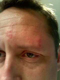 shingles on my face: August 2009