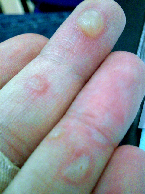 Friction Blisters Hands