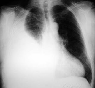 How to read a chest X Ray: The easiest way to read a CXR ...