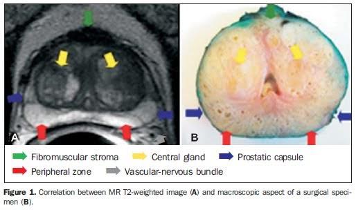 radiologyspirit mri of prostate