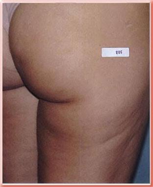 grade 2 cellulite