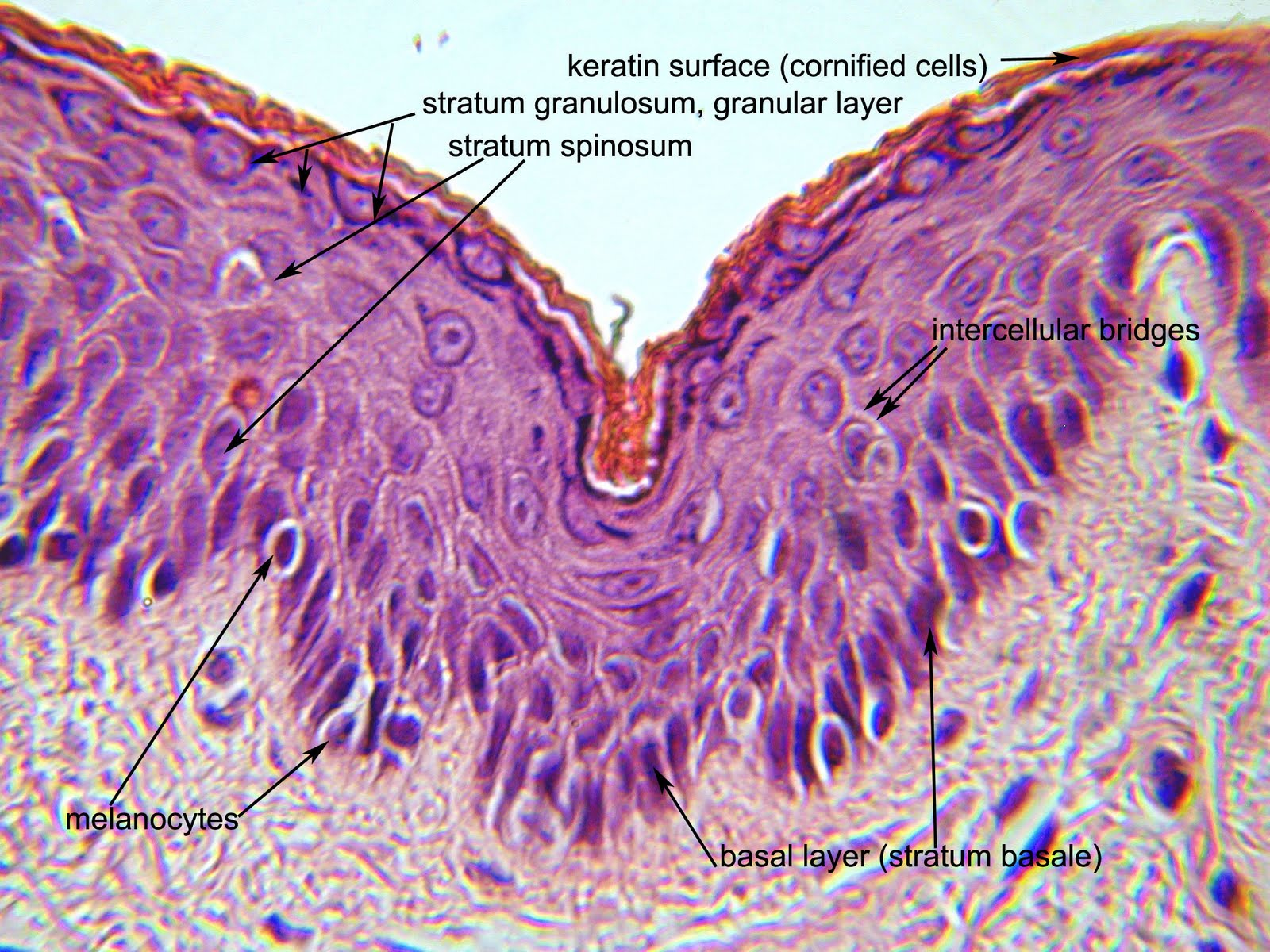 Ocular Pathology: Tissue Types-Epithelium, Blood Elements ...