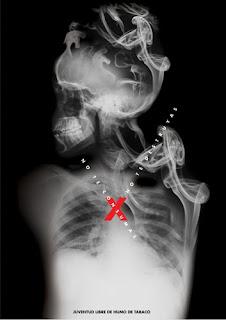radiografia de humo