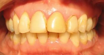 Resultado de imagen de Una forma rápida de eliminar el sarro de los dientes