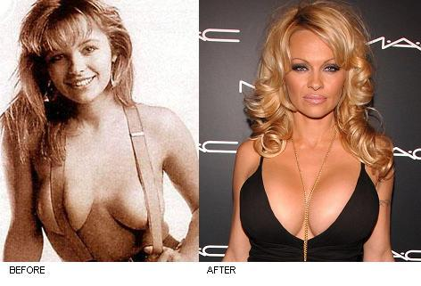 Celebrity Cosmetic Surgery Pass Fail You Decide