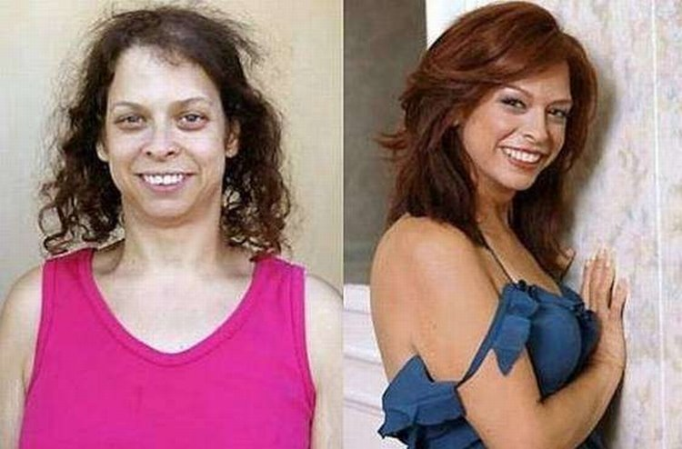 The wonders of plastic surgery