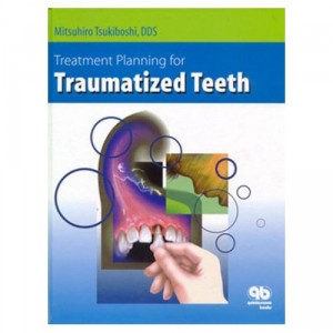 11 Download Treatment Planning for traumatized teeth PDF