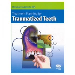 11 Download Treatment Planning for traumatized teeth PDF