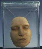 neuropathology blog: The Mutter Museum in Philadelphia Provides a