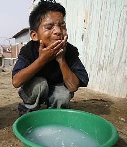 Ricos Y Pobres Pobreza Y Comida Cara El Hambre Amenaza Al Mundo