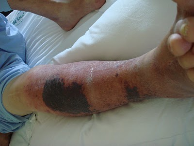 infeccion de piel y tejidos blandos