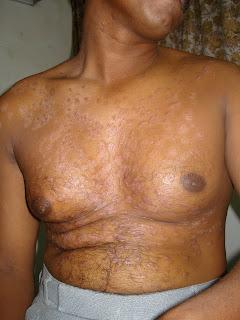 psoriasis skin disease in tamil