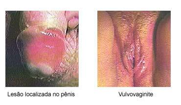 pomada ou comprimido para herpes