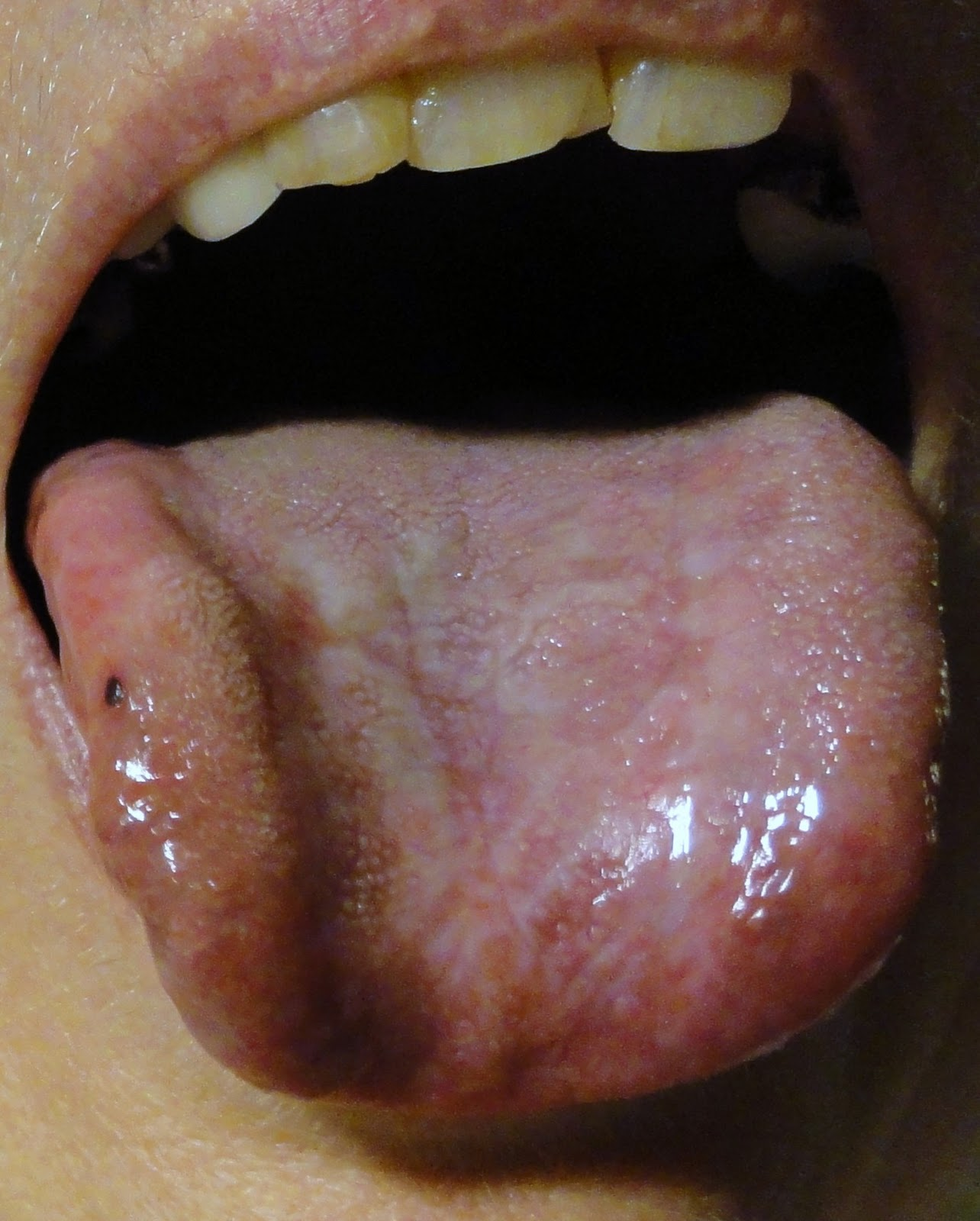 Erosive Oral Lichen Planus: September 2010