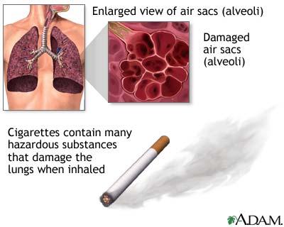 relationship between smoking and coronary heart disease