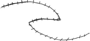 MCQ's in Facial Plastic & Reconstructive Surgery: 231-240