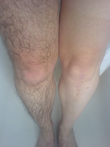 Hairy Legs Photos 78