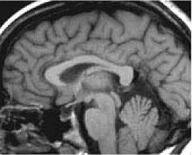 corpus callosum dysgenesi