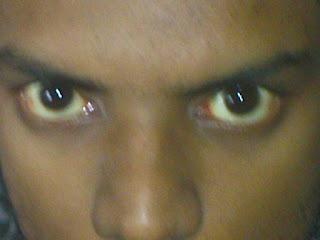 Foto_life: Jaundiced eyes.  Foto_life: Jaun...