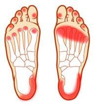 Vitaminas necessárias para cãibras nas pernas