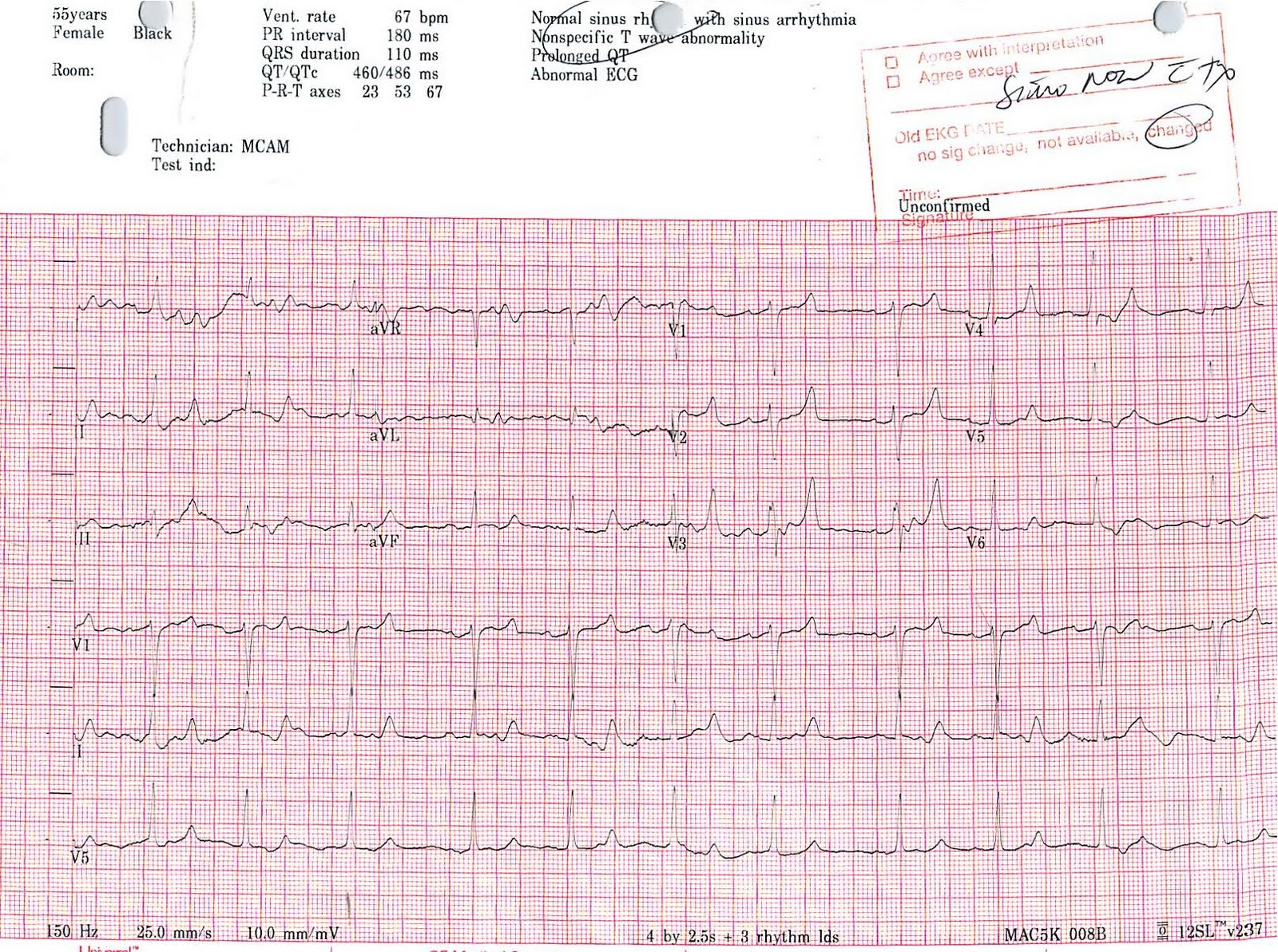 Printable Ekg Practice Strips With Answers