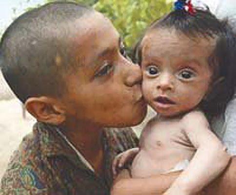 LA NUEVA CARAVANA: DESNUTRICION INFANTIL