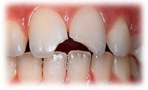 Resultado de imagen de diente roto niño