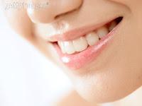 blanqueamiento dientes