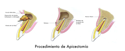 eliminacion infeccion dental absceso con apicectomia