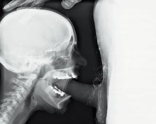 Deep throat x ray