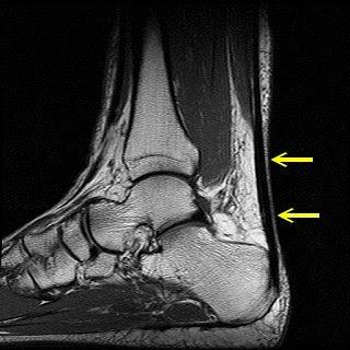 ArUn's MRI Protocols: Achilles tendon MRI images