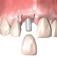 İmplant Kesici Diş