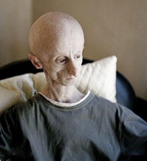 Kushner When Bad Things Happen: Progeria: Progeria In Media