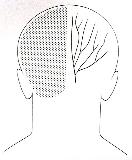 Denver Doc Online: Occipital neuralgia and Lyrica