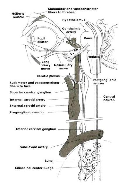 EL RINCÓN DE LA MEDICINA INTERNA: Síndrome de Horner.