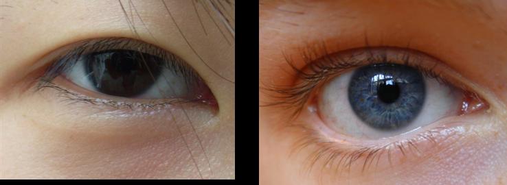 Asian Eye Folds 30