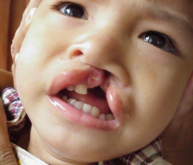 cleft chin baby - photo #34