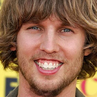 Celebrity Cosmetic Dentistry: How to fix Jon Heder's gummy smile