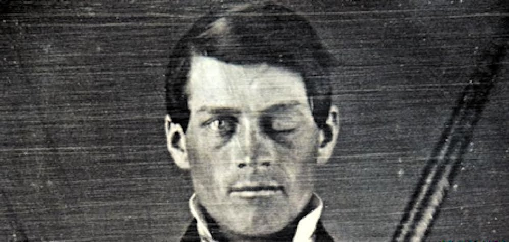 phineas_gage-p-w.jpg