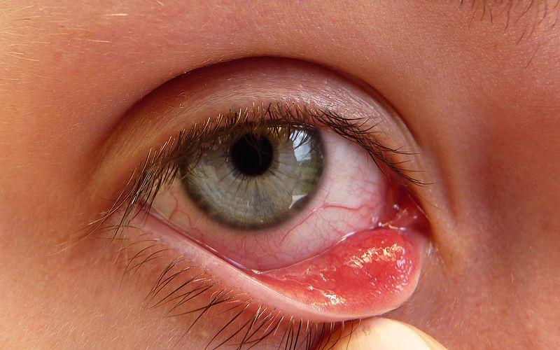 Save on energy business program victoria, how do u get eye herpes