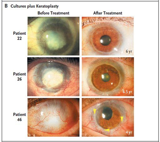 Knowledge Era: Stem cells reverse blindness caused by burns