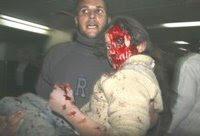 Na foto (AP), criança bombardeada por Israel em escola da ONU é levada para hospital próximo