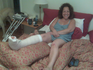 Broken Foot Cast