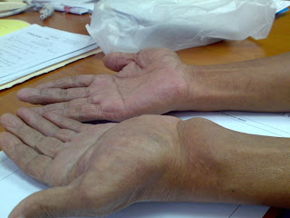 BRUNEI Doctors Mess CLUB: Swelling at the Wrist