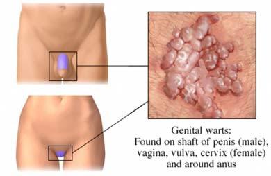 Cura virus papiloma humano en hombres