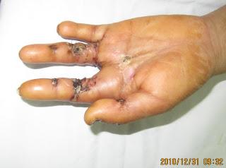 bị dập tay khi sử dụng máy ép mía