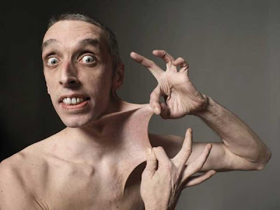 Garry Turner of Britain hold the record for the man with the most stretchable skin