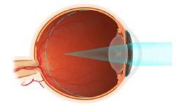 31a4cce9d5499 2 – Lentes de Contato  Lentes gelatinosas ou rígidas gás permeáveis são  ótimas opções para a correção da miopia. Pacientes míopes com mais de 40  anos e que ...