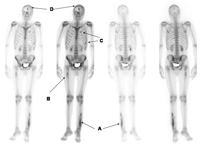 Nuclear Medicine Technology Collaboration Project: Bone