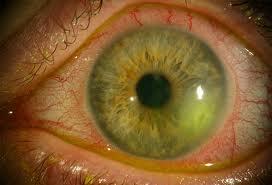 herpes en el ojo imagenes